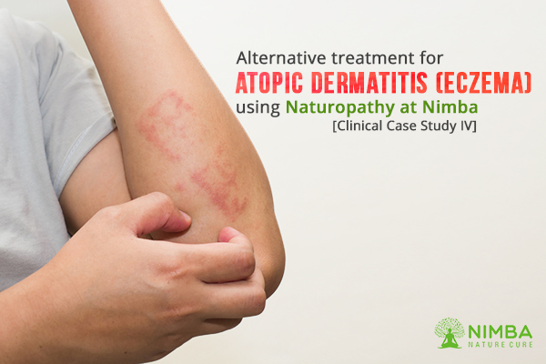 Alternative treatment for Atopic Dermatitis (Eczema)